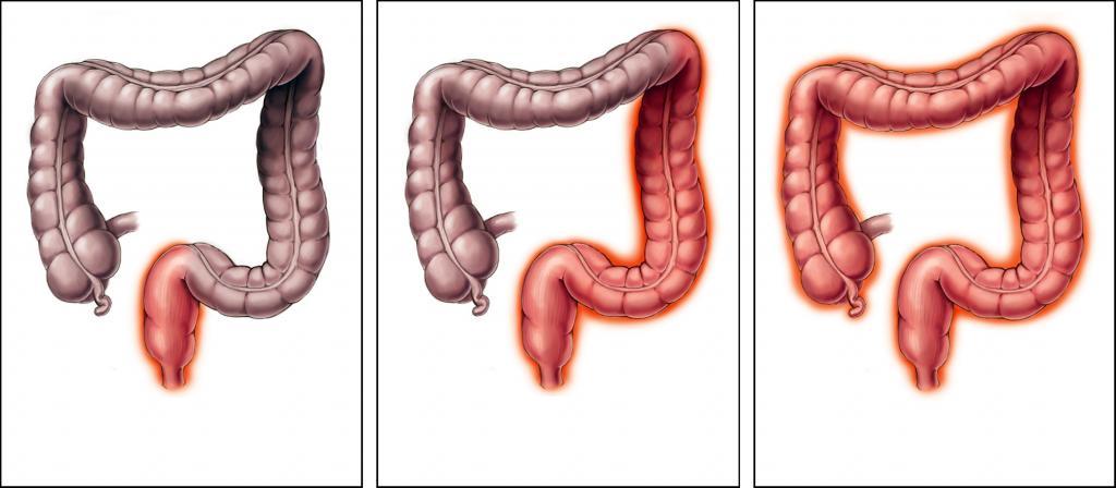 Язвенный колит кишечника — что это такое, причины, симптомы.