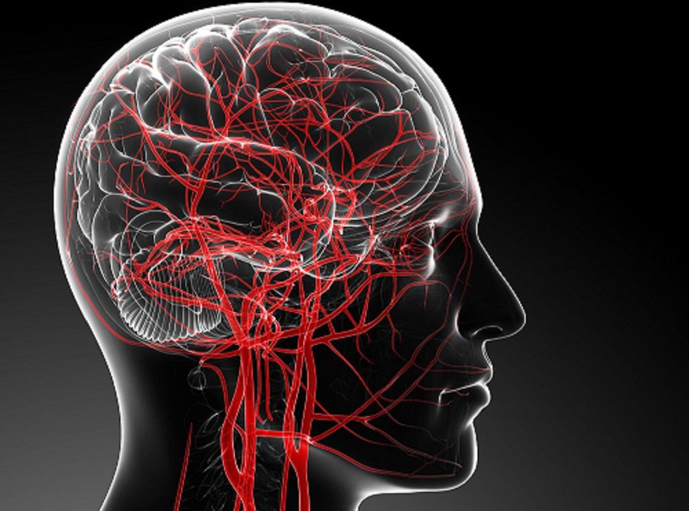 Сосуды головного мозга картинка